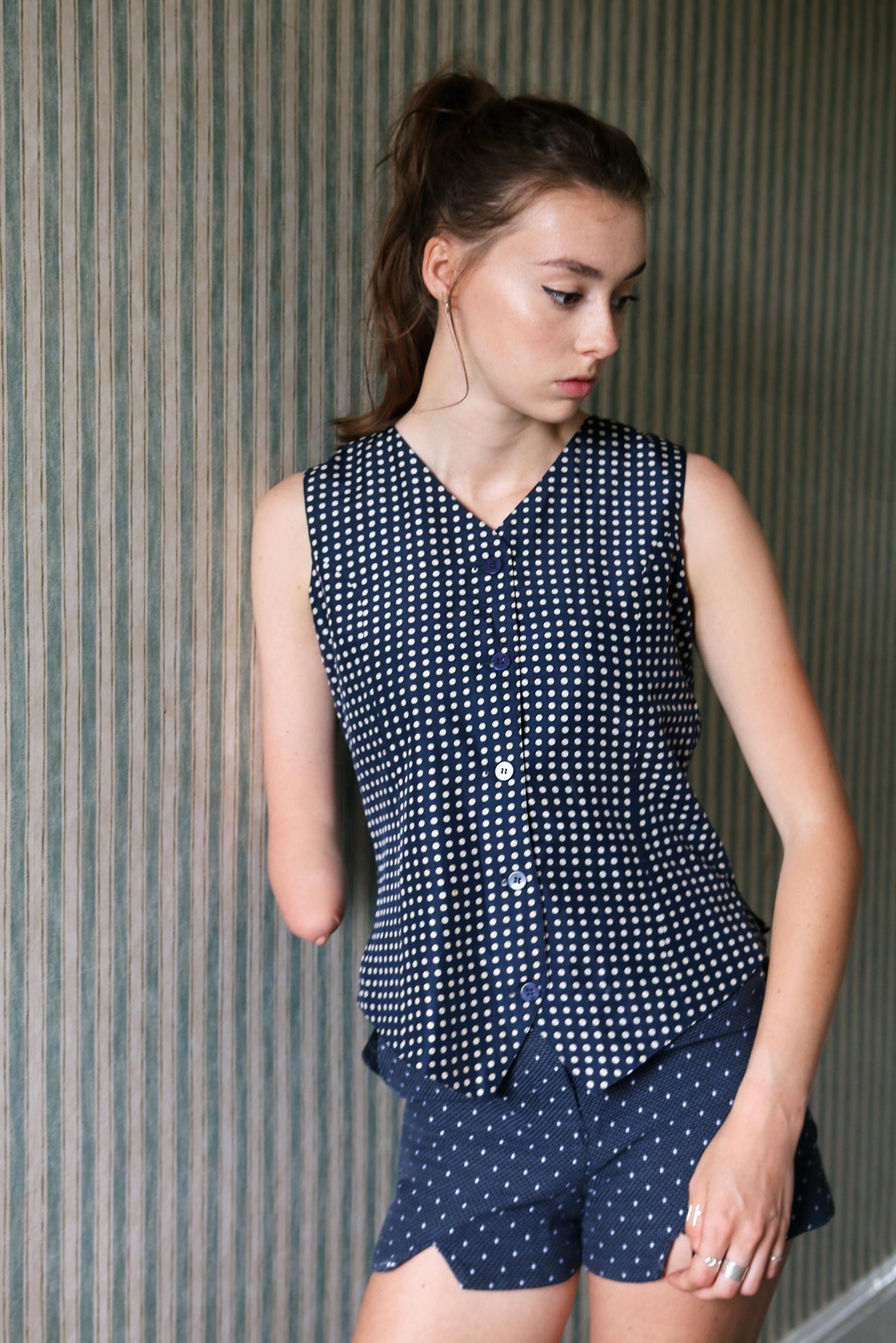 vintage waistcoat, amputee, one hand, kelly know, grace mandeville, disabled blogger, disabled fashion